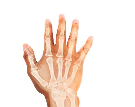 Close up Hand showing bone x-ray, Medical concept, Image too bright and blurry. Zdjęcie Seryjne