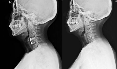 C-spine x-ray lateral views A female 56 year old.Normal cervical spine and post operation with plate and screws in c5-c6.