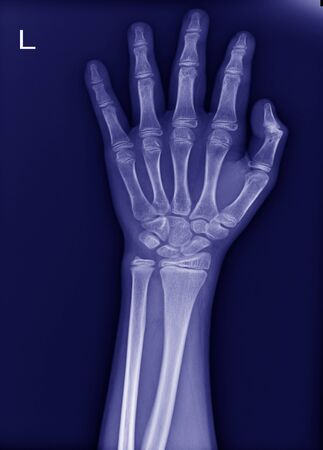 x-ray left wrist No fracture and normal joint.process blue tone  Standard-Bild
