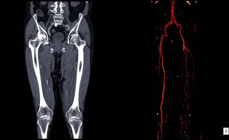 Computer tomography angiography ( CT angiography or CTA) of lower extremities case of hemagioendotheliom left leg ,CTA Leg 3D.