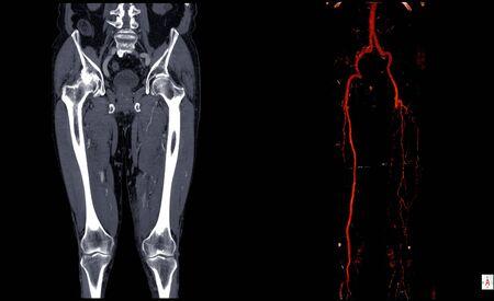Computertomographie-Angiographie (CT-Angiographie oder CTA) der unteren Extremitäten bei Hämagioendotheliom linkes Bein, CTA Leg 3D.