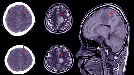 CT brain scan of a patient with history of mild head injury showing large subacute subdural hematoma on left cerebral hemisphere. Imagens