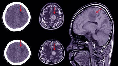Tomografía computarizada del cerebro de un paciente con antecedentes de traumatismo craneoencefálico leve que muestra un gran hematoma subdural subagudo en el hemisferio cerebral izquierdo. Foto de archivo
