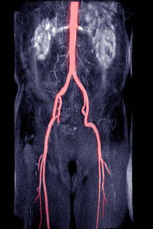 MRA Abdominal aorta with Abdominal aorta.