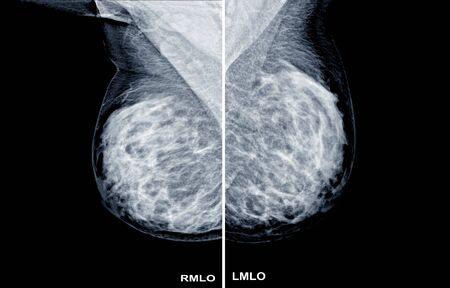 Mammogram radio imaging Both side for cancer diagnosis