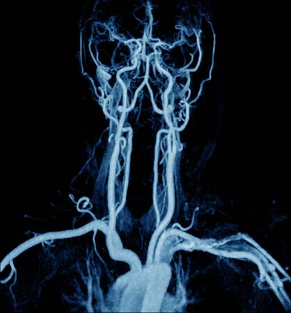 Magnetic Resonance Angiogram of the brain vasculature (arteries) too soft and blurry image when views full solution.