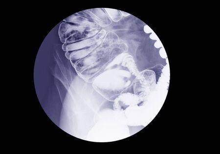 Barium enema examination spot film (lower gastrointestinal (GI))