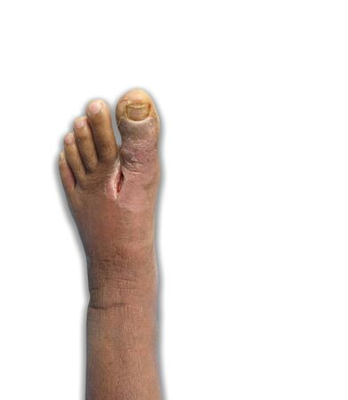 Left Foot wound infected Diabetes. Abrasive injury to left foot above big toe MTP joint on white background