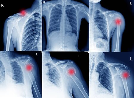 Collection Film x ray shoulder radiograph show shoulder dislocation and bone broken (neck of humerus fracture) from accident Highlight on arrow point. Medical imaging concept.