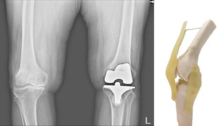 X-ray both knee showing degenerative osteoarthritis (OA knee disorder) treated by total knee replacement surgery ( TKR ) or joint prosthesis and model of knee joint. Medical technology concept.