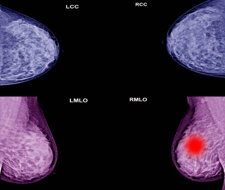 Both side collection of Mammogram radio imaging for  breast cancer awareness.