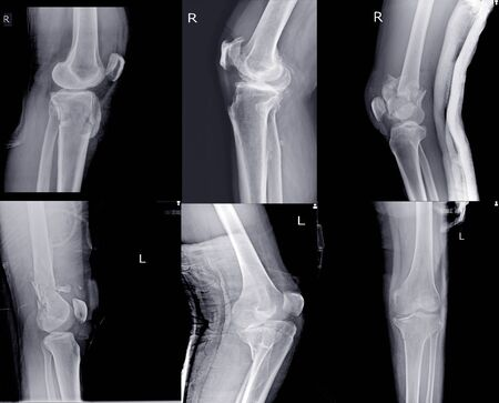 Knee joint x-ray collection fracture different views. Medical concept. Stock fotó
