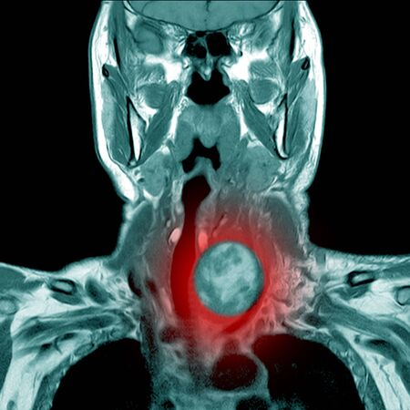 Magnetic resonance imaging (MRI) of neck,case of neck IMPRESSION:-Deep neck infection in retropharyngeal space cyst at lower pole of Lt lobe of thyroid