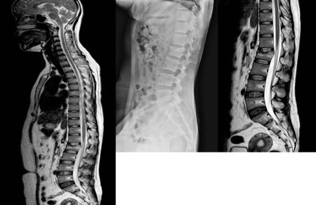 Lumbar spine lateral views X-Ray and MRI scan Showing  compression fracture of L2.Medical healthcare and technology concept.