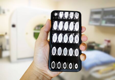 The doctor examined the brain scan using a smartphone Background blur CT-SCAN Medical and health technology concepts