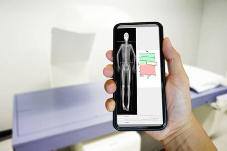 The doctor examined the bone sscan using a smartphone Background blur BMD-SCAN Medical and health technology concepts
