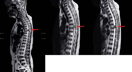 MRI Thoracic spine History:Case back pain radiate to buttock and legs finding intradural and  extramedullary mass T6 spine on arrow point. 版權商用圖片