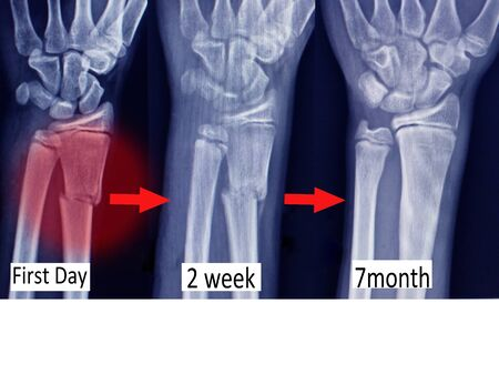 x-ray wrist three views show fracture distal radius (forearms bone)on red color mark and step bone union.