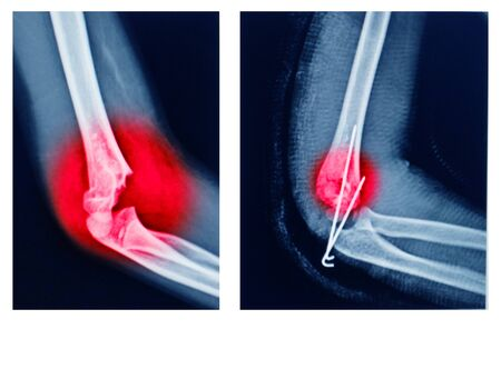 X-ray elbow showing  supracondylar humerus fracture and post opretion fix K-wire.Medical concept. 版權商用圖片