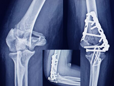 Film Elbow fracture distal humerus bone and post operated with internal fixed by plate and screw.