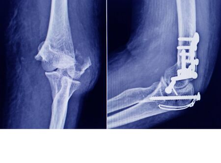 Film Elbow fracture medial epicondyle humerus bone and post operated with internal fixed by plate and screw. Standard-Bild