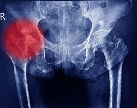 Both hips joint x-ray showing destruction head right femur and erosion acetabulum with widening right hip joint from chronic arthritis.Medical image concept.