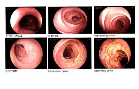 Image de coloscopie. Organes internes Canal anal, sigmoïde, côlon descendant, rectum, côlon transverse, côlon assendant est normal. Concept de soins médicaux.
