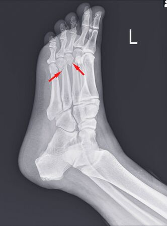 X-ray foot and ankle showing Metatarsal fractures on red arrow point.Metatarsal fractures are among the most common injuries of the foot. 版權商用圖片
