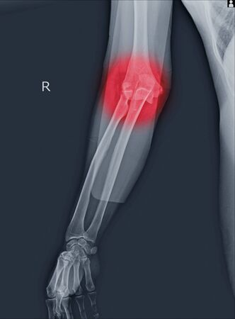 x-ray elbow dislocations and fracture on red point.radial head fractures are among the most common elbow fractures. Stock Photo