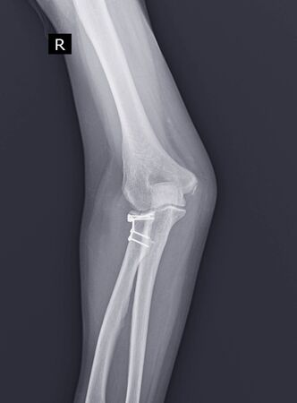 X-ray Elbow joint. After open reduction and internal fixation for radial head with Leibinger plate and repair of lateral ulnar collateral ligament with suture anchor.