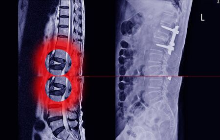 Medical X-ray and MRI of lumbar spine compression fracture Bulging of L1-2.and post lumbar spine fix by iron rod and screws.Lumbar spondylosis from L1-2 to L5-S1 discs.Medical healthcare concept.
