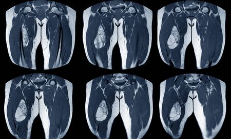 magnetic resonance imaging( MRI )of right thigh Findings:fat containing mass in vastus intermedius muscle.shows heterogeneous enhancement predominate at superomedial aspect of the mass, suggestive of recurrent liposarcoma