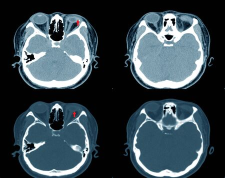 CT-Scan brain and orbit In case of accident, the bottle explodes, splashes into the eyes.Impression: Rupture of Lt eye globe with Dislocation or destruction of the lens.Medical healthcare concept.