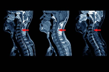 MRI OF CERVICAL SPINE : Moderate to severe posterior central disc protrusion of C3/4 to C5/6 intervertebral discs with a 2.0 cm in length small posterior subligamentous fluid collection.on red point Stock Photo