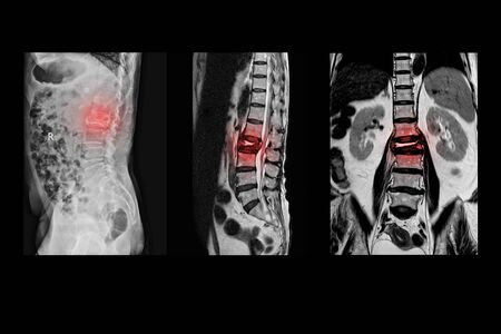 MRI of lumbar spine History of fall with back pain, radiate to leg, rule out spinal stenosis .Burst fracture of L2 vertebral body with severe vertebral collapse.