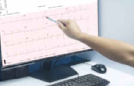 Blurred  image close up General practitioner examines electrocardiogram of patient during a health check and medical consultation. Healthcare and medicine. Diagnosis and treatment of the disease. Zdjęcie Seryjne