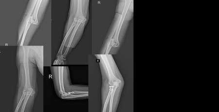Collection x-ray elbow joint showing dislocations and fracture radial head are among the most common elbow fractures.Medical image concept.