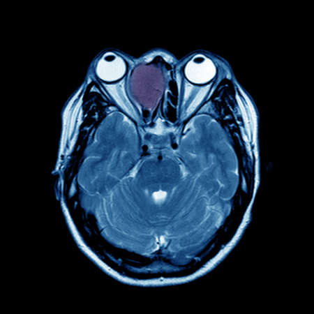MRI OF BRAIN AND ORBIT FINDINGS :The study reveal a well-circumscribed, expansile growth lesion, occupying at right anterior ethmoid and right frontal sinuses.