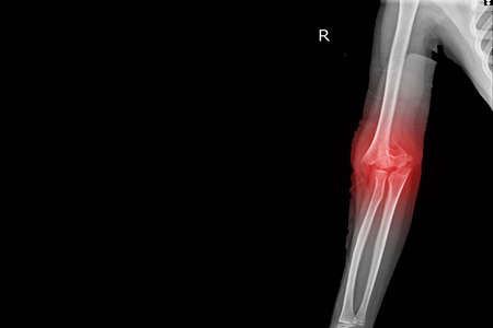 X-ray Elbow joint Finding Supracondylar fracture distal humerus with joint effusion.Medical image concept.