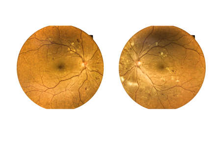Fundus photography Madical Retina  both eye Abnormal isolated on white background.Retina of diabetes check up medical healthcare concept. 版權商用圖片