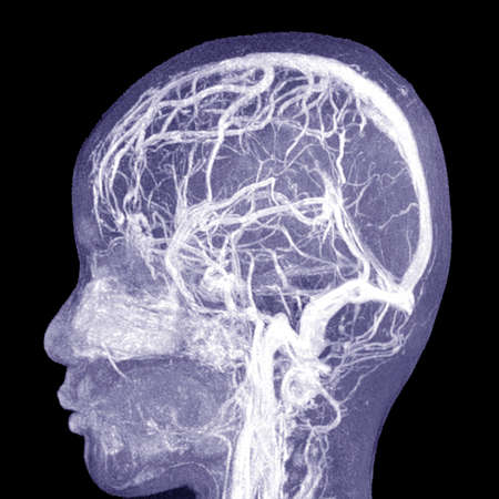 MRI THE BRAIN.Moderate perilesional vasogenic edema with 0.7 cm midline shift to the left side.Medical image concept.