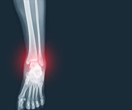 Film x-ray Ankle and Foot fracture distal fibula bone with soft tissues swelling on red mark.Medical healthcare concept. Фото со стока