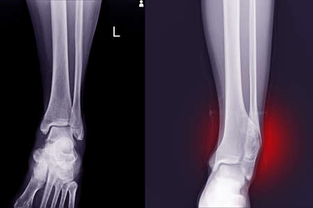 X-ray Foot and Ankle  Normal joint and osteochondroma of distal tibia cause pressure effect to fibula.Medical image concept.