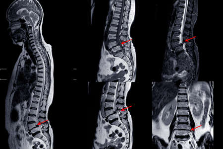 MRI of lumbar spine showing Cervical spondylosis with mild to moderate spinal cord compression at C4-5 and C5-6 with myelopathy
