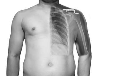 Closeup Body human x-ray of shoulder showing fracture of distal clavicle or collarbone. the fracture is superior displaced. the patient need surgery in operating room Fracture of distal clavicle which was treated using hook plate fixation (O.R.I.F.)