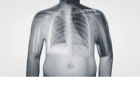 Closeup Body human x-ray of shoulder showing normal and fracture of distal clavicle or collarbone.the patient need surgery in operating room Fracture of distal clavicle which was treated using hook plate fixation .