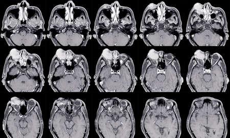 MRI OF BRAIN AND ORBIT HISTORY: Growing right orbital mass for 1 year, Orbital inflammatory disease (orbital pseudotumor)Medical image concept.
