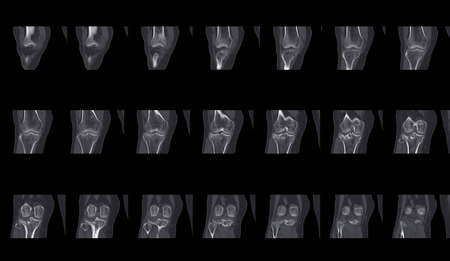 collection of x-ray human's knee joints finding fracture proximal metaphysis of tibia.Healthcare and insurance concept.