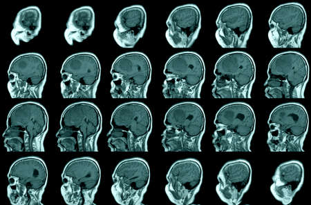 MRI BRAIN Sagittal views FINDINGS: The study reveals a well-circumscribed, extra-axial mass, arising from anterior falx cerebri,extending to bilateral frontal regions, with adjacent minimal perilesional edema at left frontal lobes. Фото со стока