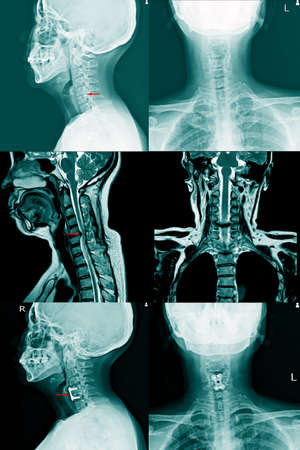 X-ray C- Spines and MRI scan of a patient with chronic upper extremities weakness showing herniated nucleus pulposus at C4-C5 levels Cervical Spine Osteoarthritis,Cervical disc herniation.